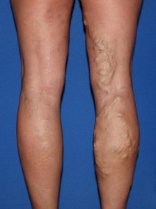 Image result for varicose veins