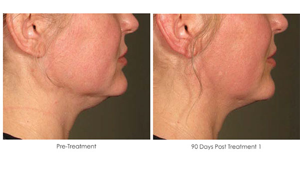 Ultherapy-Before-and-After-1-11