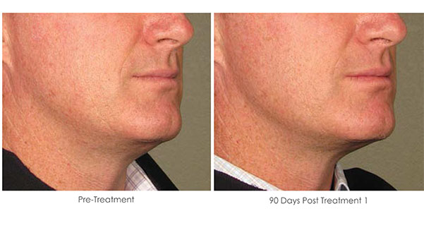Ultherapy-Before-and-After-1-12