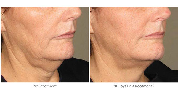 Ultherapy-Before-and-After-1-13