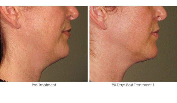 Ultherapy-Before-and-After-1-14