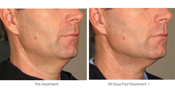 Ultherapy-Before-and-After-1-15