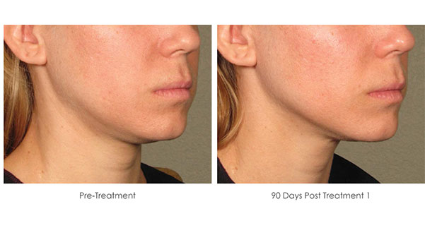Ultherapy-Before-and-After-1-16