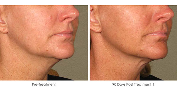 Ultherapy-Before-and-After-1-17