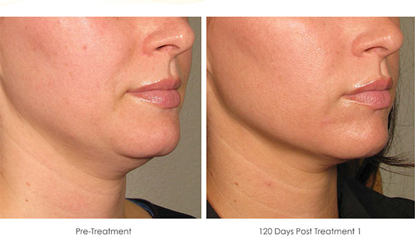 Ultherapy-Before-and-After-1-18