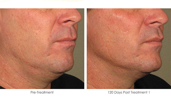 Ultherapy-Before-and-After-1-19