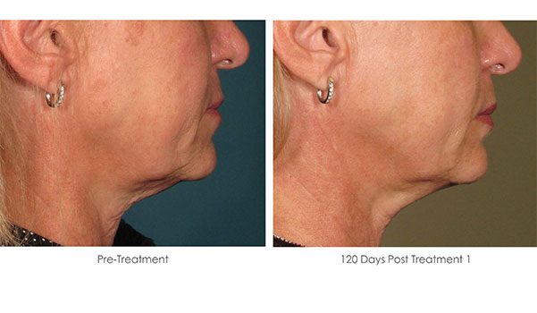 Ultherapy-Before-and-After-1-20