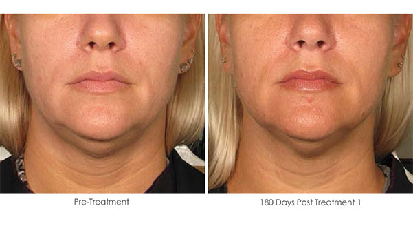 Ultherapy-Before-and-After-1-21