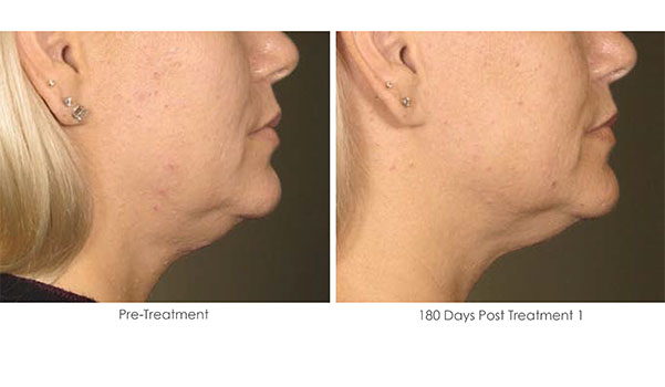 Ultherapy-Before-and-After-1-22