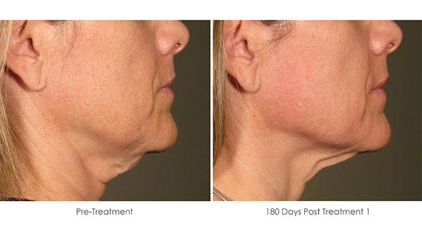 Ultherapy-Before-and-After-1-23