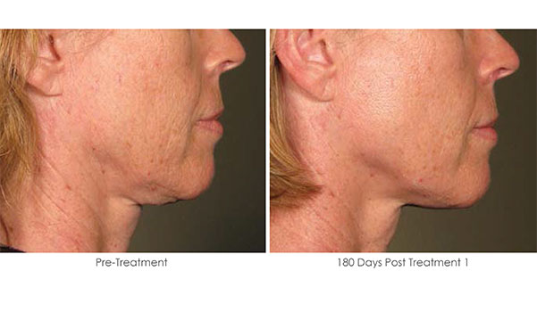 Ultherapy-Before-and-After-1-24
