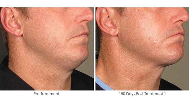 Ultherapy-Before-and-After-1-25
