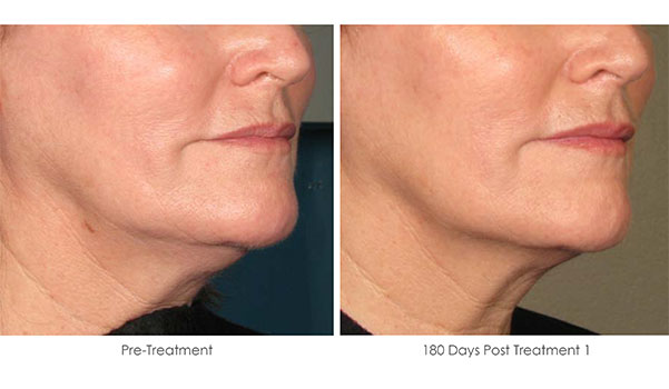 Ultherapy-Before-and-After-1-26