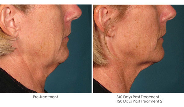 Ultherapy-Before-and-After-1-27