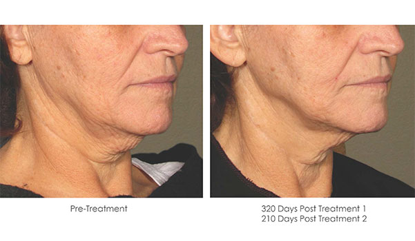 Ultherapy-Before-and-After-1-28
