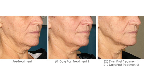 Ultherapy-Before-and-After-1-29