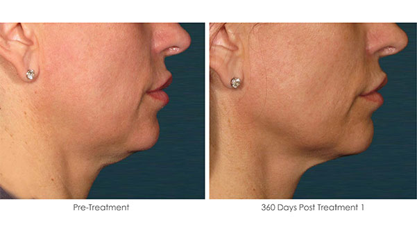 Ultherapy-Before-and-After-1-30