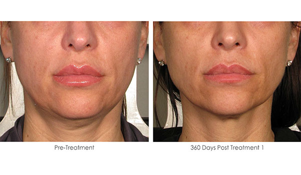 Ultherapy-Before-and-After-1-31