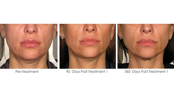 laser for wrinkles before and after