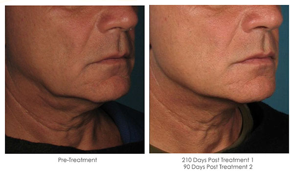 Ultherapy-Before-and-After-1-33