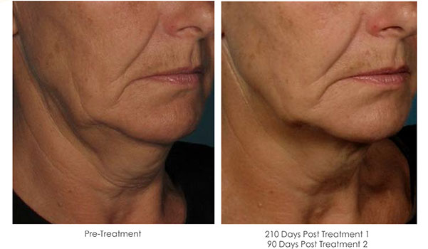 Ultherapy-Before-and-After-1-34