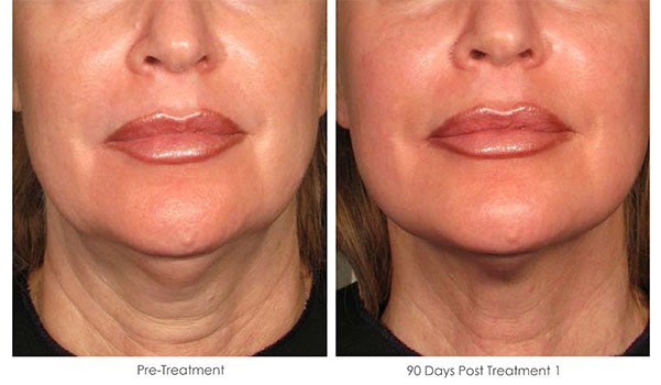 Ultherapy-Before-and-After-1-36