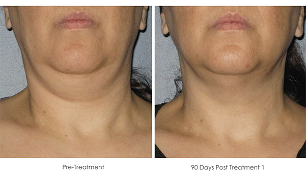 Ultherapy-Before-and-After-1-37