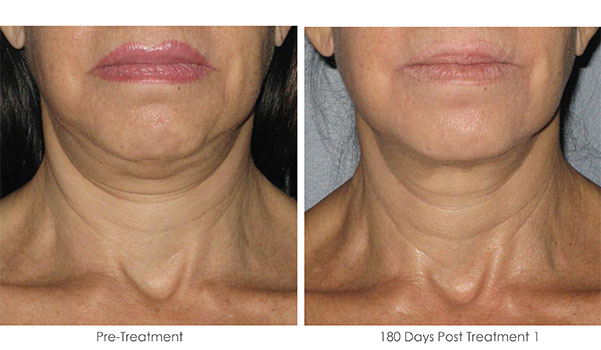 Ultherapy-Before-and-After-1-39