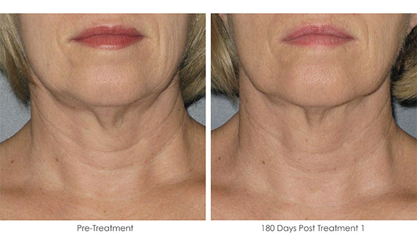 Ultherapy-Before-and-After-1-40