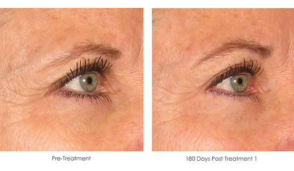 Ultherapy-Before-and-After-1-7