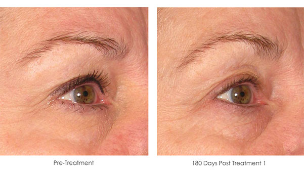 Ultherapy-Before-and-After-1-8