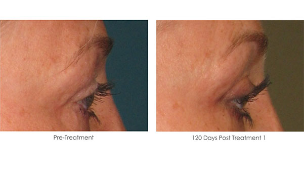 Ultherapy-Before-and-After-1-9
