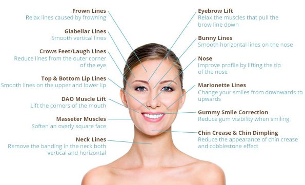 Botox Facial Diagram - Wiring Diagrams List
