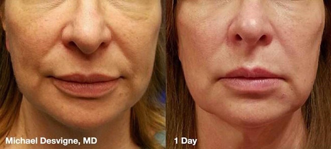 Silhouette InstaLift Non-surgical Facelift | Tampa FL