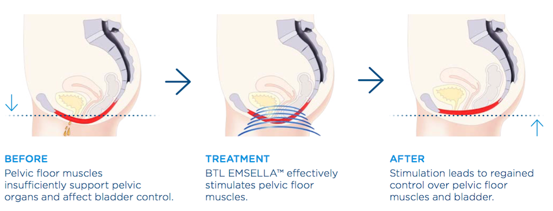 Emsella Noninvasive Urinary Incontinence Treatment | Tampa FL