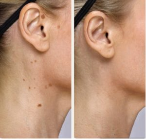 Acne Birth Marks Age Spots Treatment Tampa Bay St Petersburg