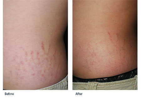 Stretch Marks Treatment Tampa Bay St Petersburg Fl